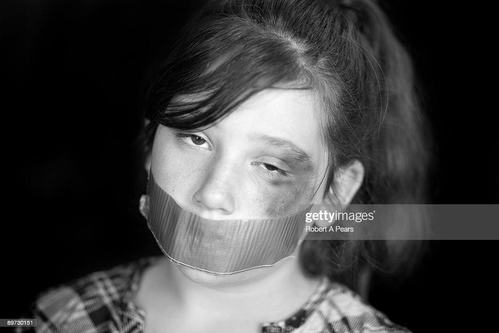 Abused Child : Stock Photo