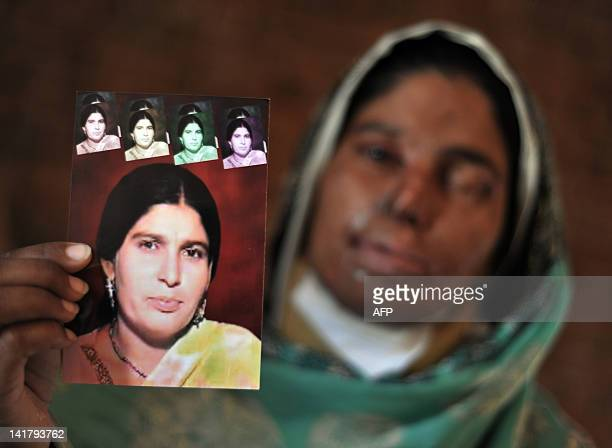 Acid attack victim Asiya Bibe poses with a portrait before her disfigurement at her residence at Bahawalpur district in Multan on March 16 2012 Acid...