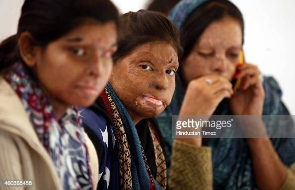 Acid fighters sitting on hunger strike for their demands to make sure that the issue of Acid Attacks on women in India gets the attention at Jantar...