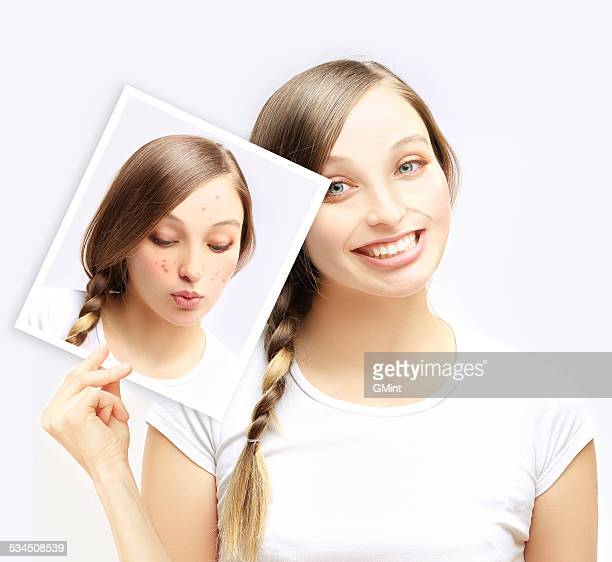 Acne.Happy teenage girl  showing a  photo of yourself with acne