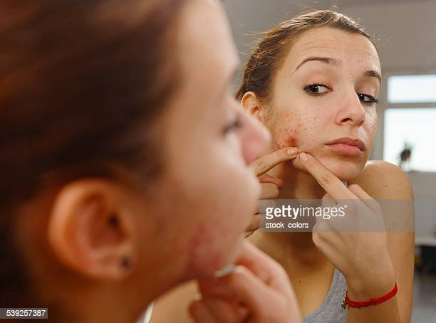 acneic woman with irritation on face