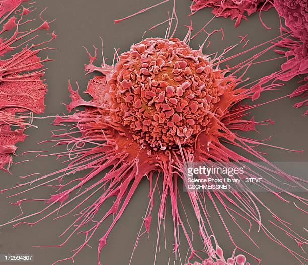 Activated macrophage, SEM