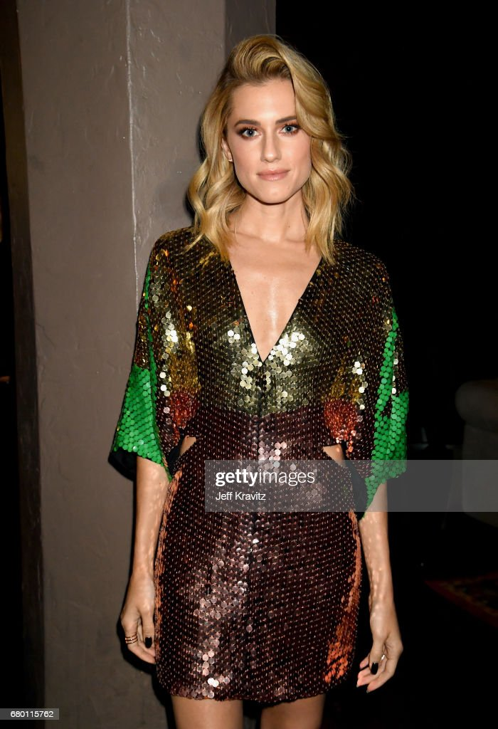 Actor Allison Williams attends the 2017 MTV Movie And TV Awards at The Shrine Auditorium on May 7, 2017 in Los Angeles, California.