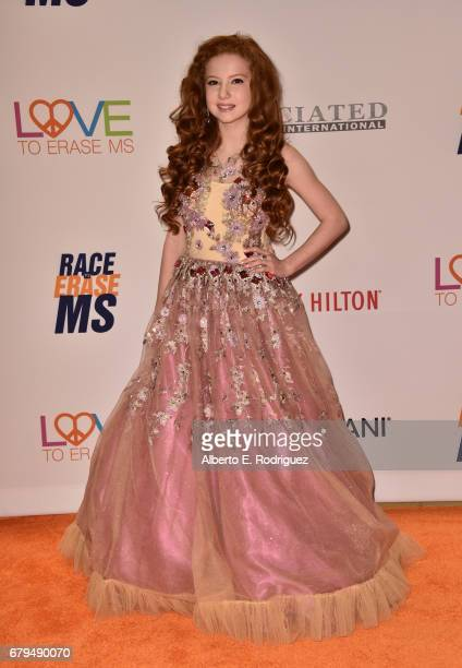 Actor Francesca Capaldi attends the 24th Annual Race To Erase MS Gala at The Beverly Hilton Hotel on May 5 2017 in Beverly Hills California