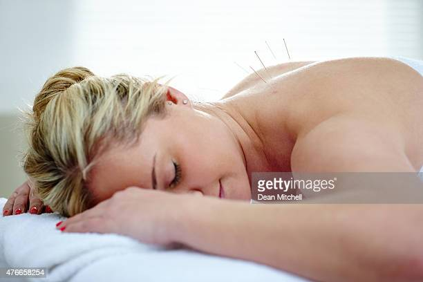 Acupuncture needles on the back of a woman