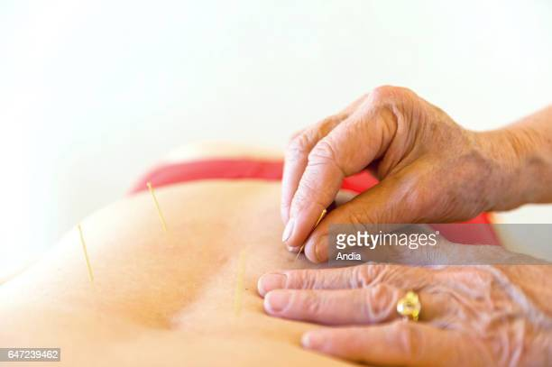 Acupuncture session treatment Acupuncture is a form of alternative medicine and a key component of traditional Chinese medicine involving thin...