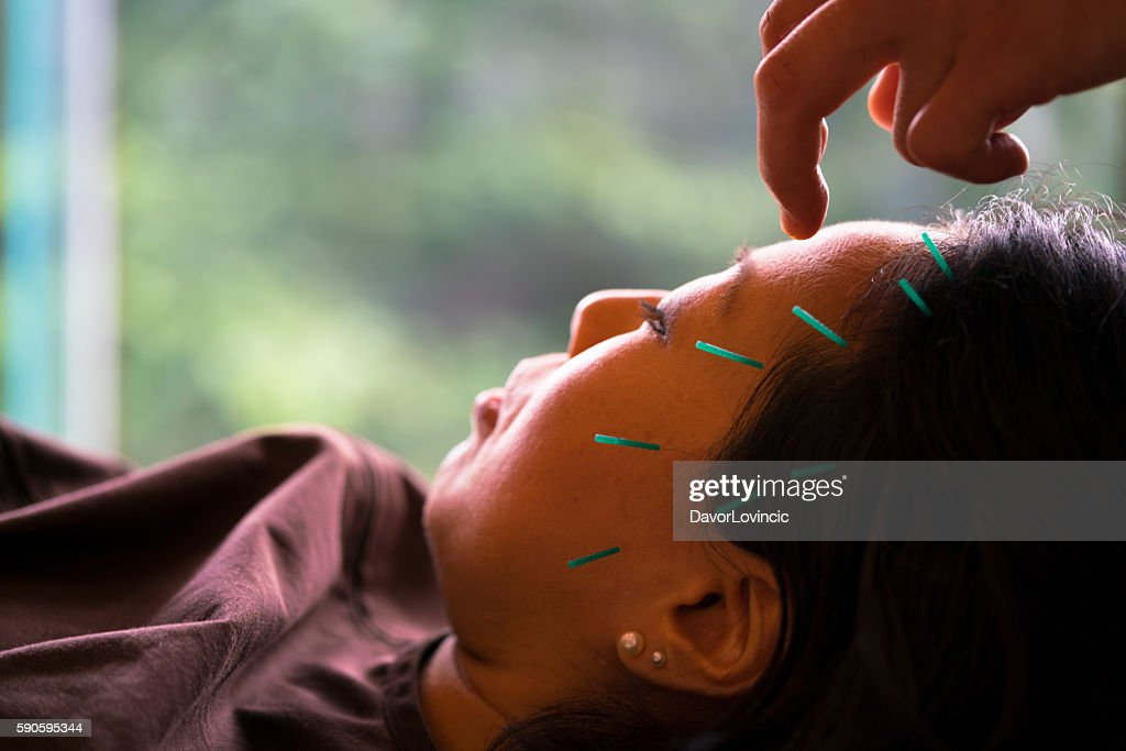 Acupuncture treatment of woman head in Kyoto, Japan