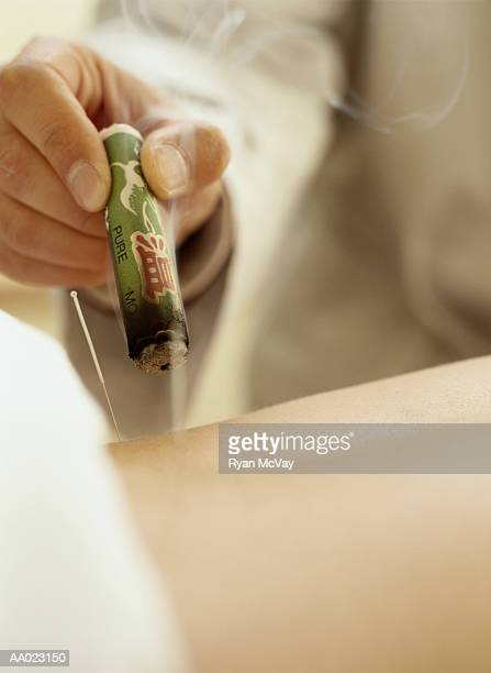 Acupuncturist Using a Cigar Moxa