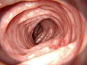 A polyp which can turn into colon cancer. Such polyps are considered pre-cancerous. Almost all colorectal tumors start from adenomatous polyps