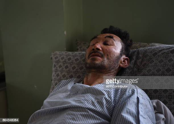 Afghan resident and mason Jan Ali is treated at the Wazir Akbar Khan hospital one day after a sucicide attack on a mosque in Kabul on October 21 2017...