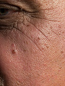 Age spots and wrinkles on senior man's skin, close-up