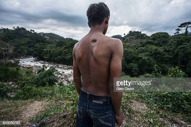 Alan Garcia an environmental defender survived being shot at close range by the Honduran Military during a protest against the Agua Zarca Dam The...