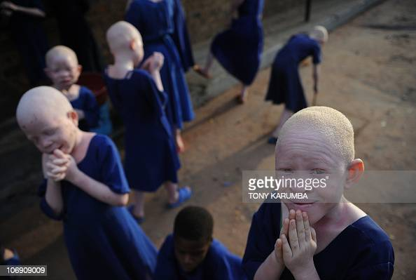 Albino children take a break on January 25 2009 in a recreational hall at the Mitindo Primary School for the blind which has become a rare sanctuary...