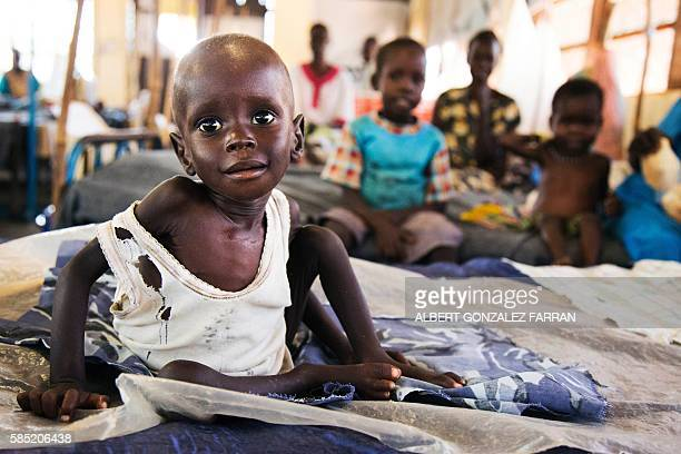 TOPSHOT Aleo Tong who suffers severe malnutrition rests on a bed at the MSF Nutrition centre in Aweil Hospital on 2 August 2016 The low rainfall in...