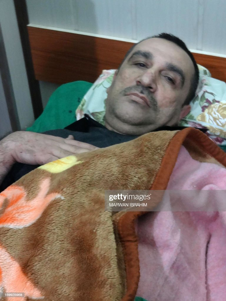 Ali Hashem Oghlu, the deputy chief of the Iraqi Turkman Front and a provincial councillor in Salaheddin, lays in a hospital bed after being injured by a suicide bomber in Kirkuk, north of Baghdad, on January 23, 2013. A suicide bomber made his way into a Shiite mosque north of Baghdad and blew himself up in the middle of a packed funeral, killing 42 people and leaving corpses scattered across the floor.