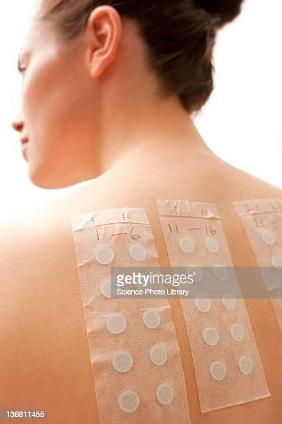Allergy patch test
