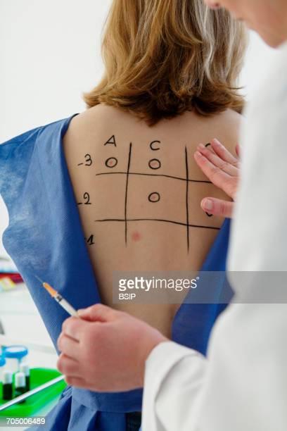 Allergy test, woman