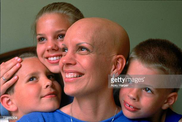 Alopecia sufferer beauty queen Cari Bickley showing off her bald head while surrounded by her children Danielle Kyle and Nick at home in Spokane...