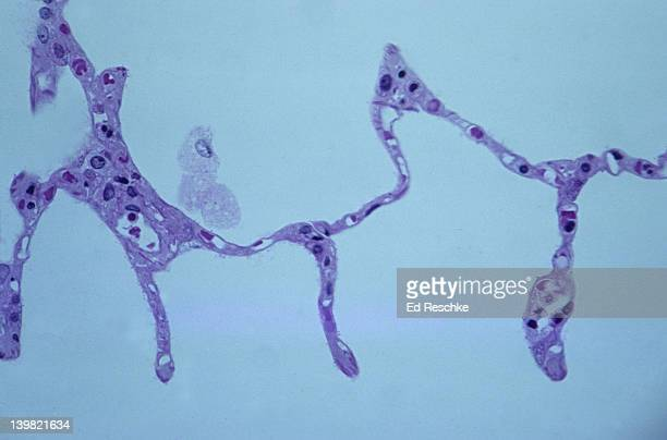 Alveolar macrophage (phagocyte) & alveoli. Normal human lung tissue, 100X at 35mm. Shows single macrophage in alveolus, thin alveolar wall, red blood cells in pulmonary capillaries, & the extremely thin respiratory membrane for gas exchange.