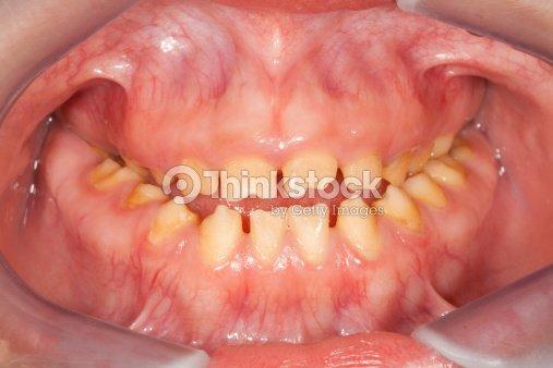 amelogenesis imperfecta stock photo