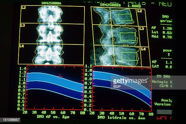American Hospital In Paris Bone Densitometry Of The Vertebrae In A 55 Year Old Woman Normal Vertebral Trabecular Density Far Above The Average For...