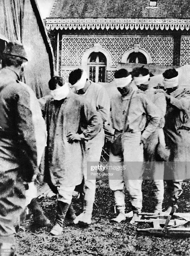 American prisoners of war victims of German gas attacks World War I 1918 The men's eyes are not blindfolded but are bandaged with medical dressings