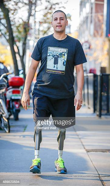 Amputee Giuseppe Chessari was hoping to go to a facility in Oklahoma where the technical expertise in prosthetics is far better than here in Toronto...