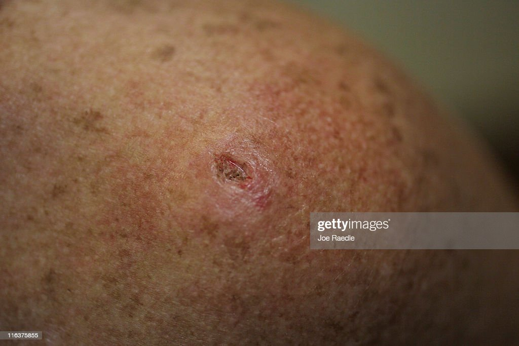 Amy Rey has a mark on her skin after a biopsy was performed on a lesion to check for cancer due to sun exposure on June 15 2011 in Miami Florida The...