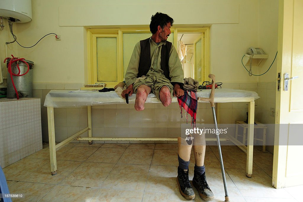 An Afghan amputee waits for the doctor at the International Committee of the Red Cross (ICRC) hospital for war victims and the disabled in Mazar-i Sharif on December 4, 2012. The ICRC Orthopaedic Project, which began in 1988 in Kabul, now has seven centres in various Afghan provinces.