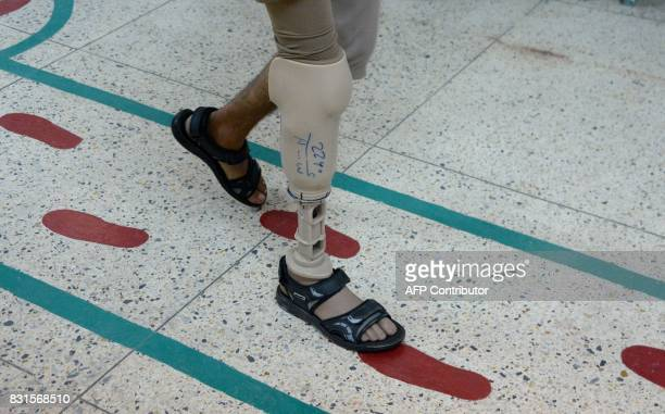 An Afghan amputee walks with a prosthetic leg at a International Committee of the Red Cross hospital for war victims and the disabled in Jalalabad on...