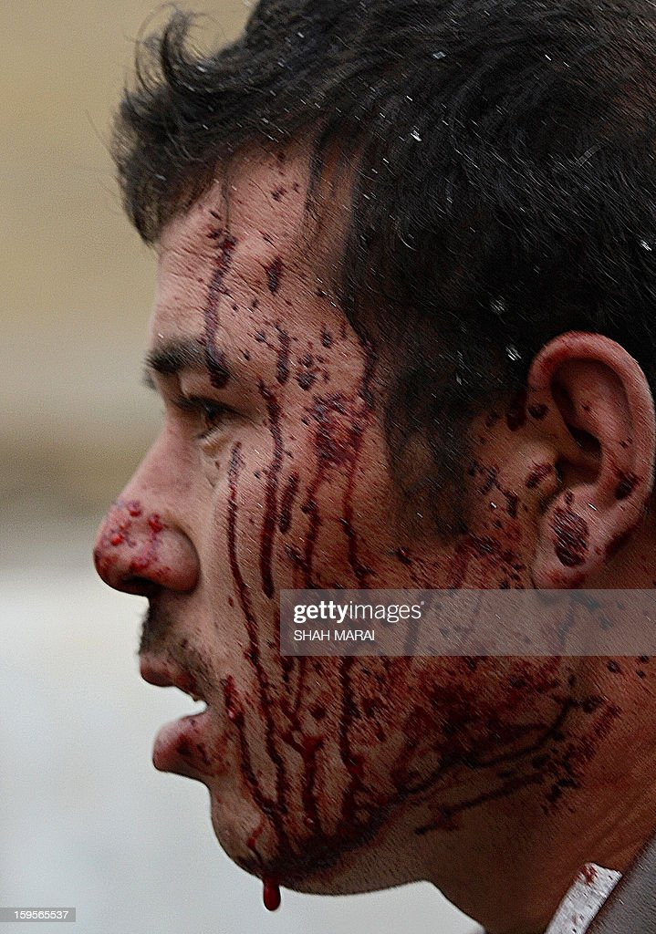 An Afghan man, his face covered in blood, looks on at the site of a suicide attack near the Afghan intelligence agency headquarters in Kabul on January 16, 2013. A squad of suicide bombers attacked the national intelligence agency headquarters in heavily-fortified central Kabul on January 16, killing at least two guards and wounding dozens of civilians, officials said. AFP PHOTO/ SHAH Marai