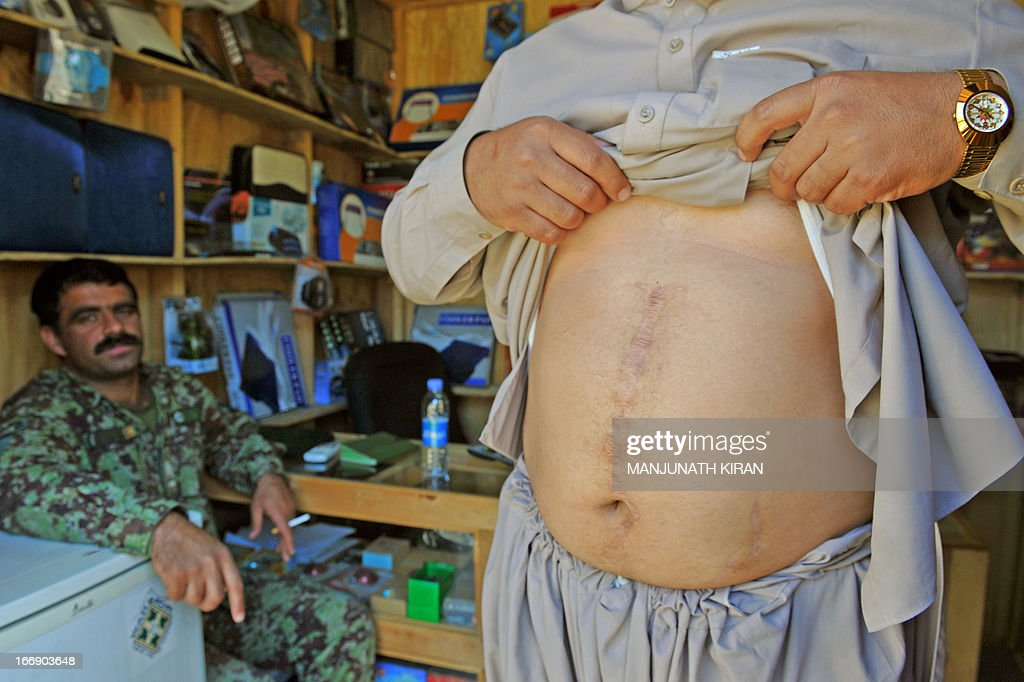 An Afghan National Army (ANA) officer (L) looks on as 34-year-old Ziarmal Barikzai shows the scars on his abdomen caused by a Improvised Explosive Device (IED) planted by insurgents to eliminate him three years ago, at the Forward Base Honaker Miracle at Watahpur District in Kunar province, on April 18, 2013. Barikzai, who now runs a small electronic shop at the Forward Base in addition to being the supervisor for civilian labourers at Honaker Miracle, was targeted by the insurgents because he works for the US-led coalition forces.