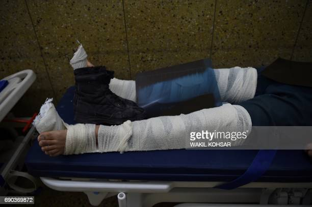 TOPSHOT An Afghan resident wounded in a car bomb attack receives treatment at a hospital in Kabul on May 31 2017 The death toll in a massive blast...