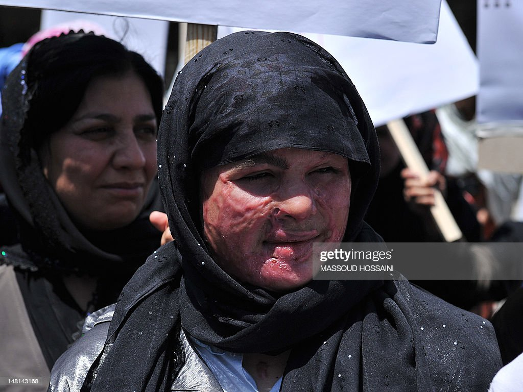 An Afghan woman, her face scarred from an acid attack, marches with other demonstrators to protest the recent public execution of a young woman for alleged adultery, in Kabul on July 11, 2012. Dozens of Afghan women's rights activists took to the streets July 11 to protest the recent public execution of a young woman for alleged adultery, which was captured in ahorrific video. AFP PHOTO/Massoud HOSSAINI