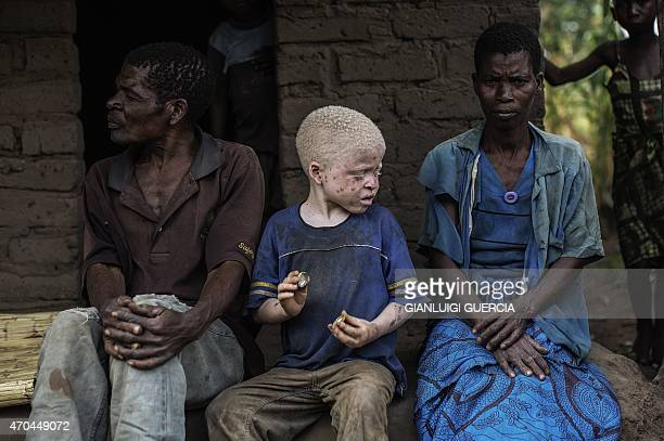 An albino child sits between his parents in the traditional authority area of Nkole Machinga district on April 17 2015 Six albinos have been killed...