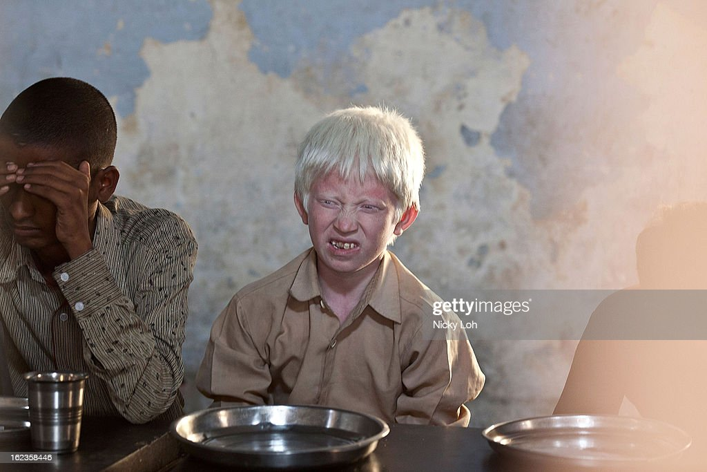 An albino visually impaired student waits for lunch at the Government High School for The Blind on February 22, 2013 in Kadapa, India. The school which is funded by the government looks after 50 visually impaired or blind students. India has the largest number of people with visual impairment globally. According to the World Health Organization (WHO), an estimated 63 million people in India are visually impaired, and of these approximately 8 million people are blind.