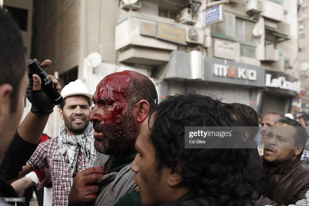 An alleged member of the Muslim Brotherhood is led through a crowd of protesters after being beaten on the head during clashes between opposition demonstrators and supporters of the Muslim Brotherhood on March 22, 2013 in Cairo, Egypt. Opposition demonstrators converged on the headquarters of the Muslim Brotherhood in the Cairo suburb of Muqattam to protest against the government of President Mohammed Morsi, who is closely connected to the Muslim Brotherhood movement. (Photo by Ed Giles/Getty Images).