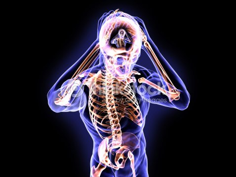 La Anatomía De Esquizofrenia Foto de stock | Thinkstock
