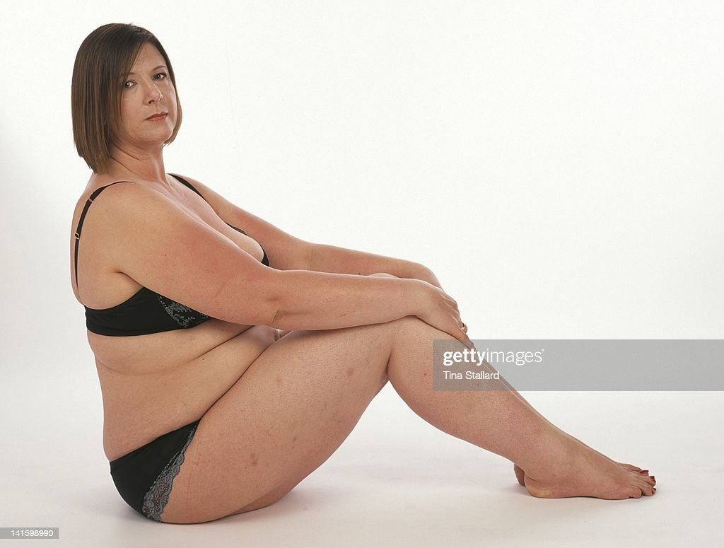 An anonymous woman, 44, nearly 2 years after she had a gastric band fitted to help her lose weight. She originally weighed nearly 20 stone (126kg) and was severely obese. Since then she she has lost three stone (19kg) but is still obese. She needs to lose a further 4 stone (25kg) to be a healthy weight.