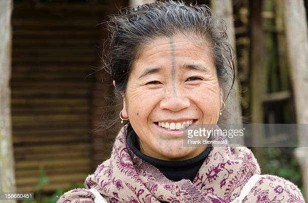 An Apatani lady of the later generation without the traditional bamboodiscs in her nostrils This custom was done to prevent the young Apatani women...