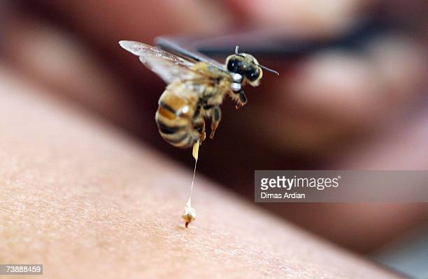An apitherapy practitioner administers a bee sting to the hand of a patient at Cibubur Bee Center on April 15 2007 in Jakarta Indonesia Bee...