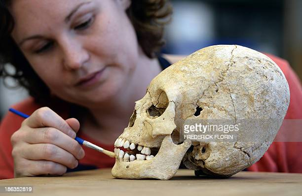 An archaeologist of the National Institute of Preventive Archaeological Researches works on a deliberately deformed skull of a 5th century barbaric...