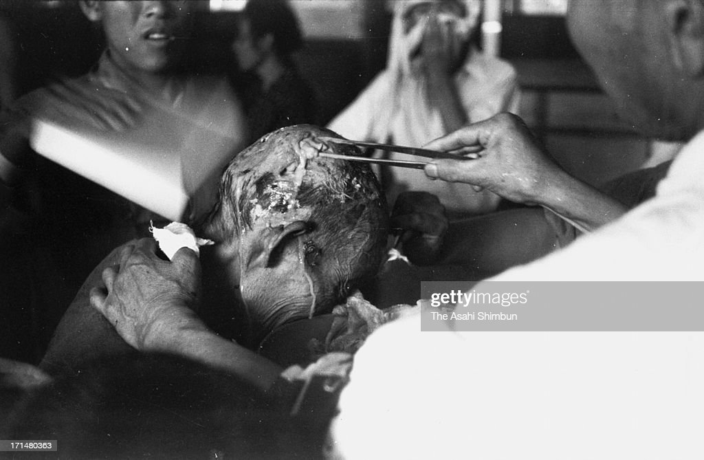 An atomic bomb surviver receives a treatment at temporary hospital set at Kozen Elementary School in August 1945 in Nagasaki, Japan. The world's first atomic bomb was dropped on Hiroshima on August 6, 1945 by the United States at the end of World War II, killing an estimated 70,000 people instantly. Three days later another atomic bomb was dropped on Nagasaki. With the effects of radiation, many thousands more dying over the following years and the number of the victims are thought to be approximately 340,000 people.