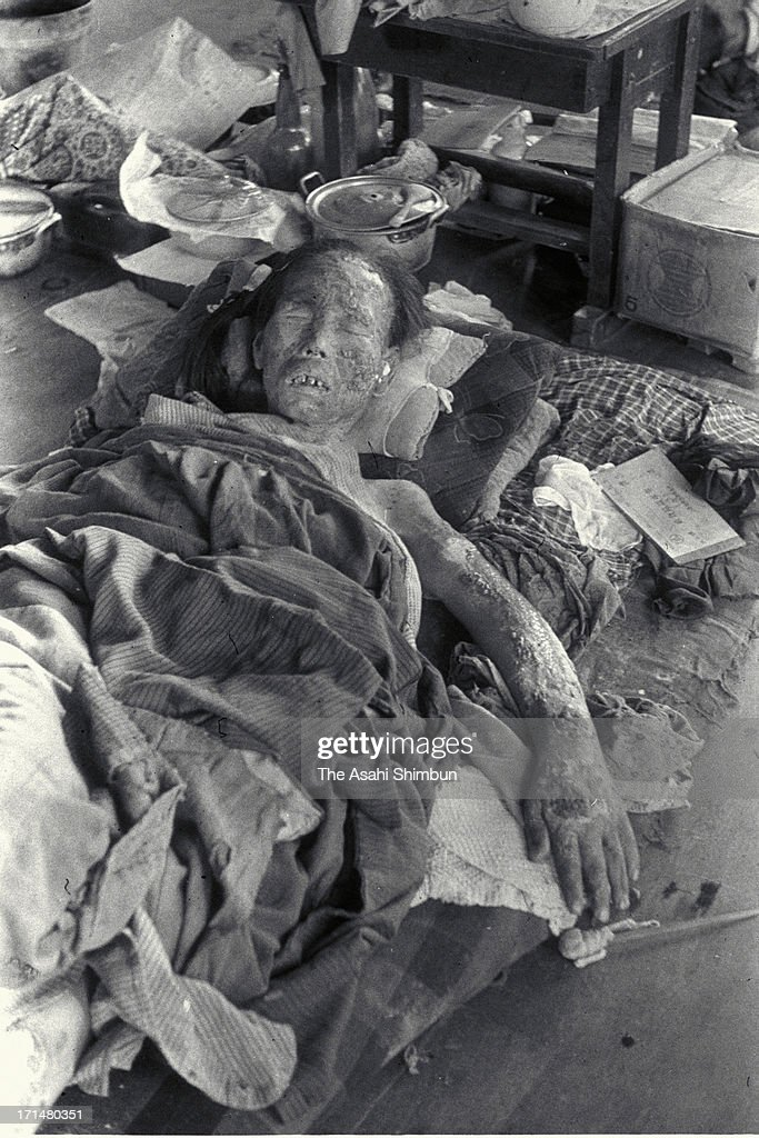 An atomic bomb surviver who suffers serious burns onto her face and an arm by Nagasaki atomic bomb lies for a treatment at temporary hospital set at...