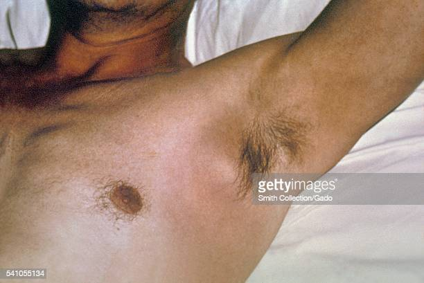 An axillary bubo and edema exhibited by a plague patient 1962 After the incubation period of 26 days symptoms of the plague appear including severe...