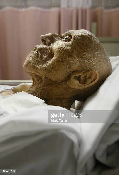 An elderly patient lies in his bed in the emergency room at Coney Island Hospital October 5 2002 in the Brooklyn borough of New York City The public...