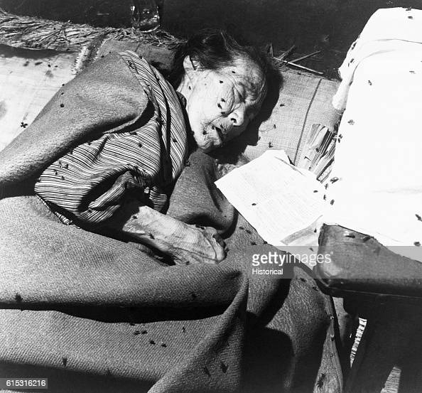 An elderly woman the victim of the atom bomb blast in Hiroshima lies covered with flies in a hospital set up in what was a bank