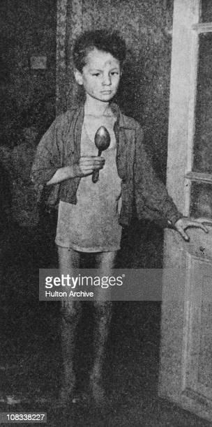 An emaciated Dutch boy Netherlands World War II circa 1944