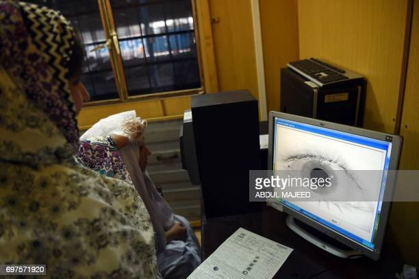 An employee at the United Nations High Commissioner for Refugees scans the eye of an Afghan refugee at the UNHCR registration centre in the Pakistani...