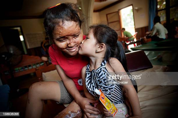 An exbeauty queen/singer who fell as a victim of an acid attack receives a kiss from her three yearold daughter In the recent years acid attacks...